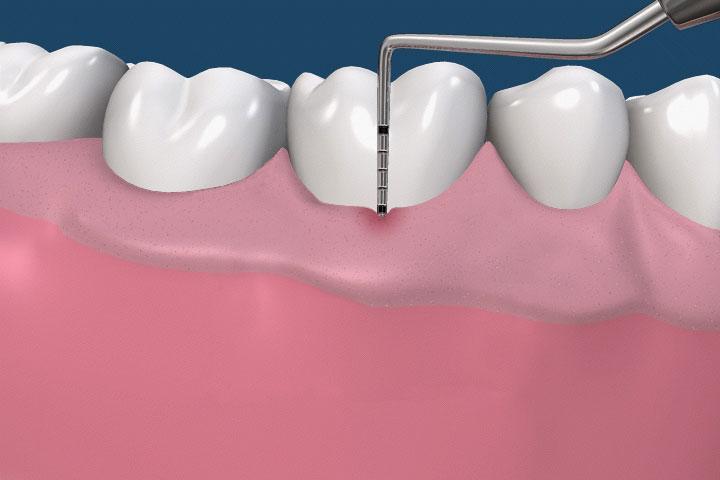 periodontist-probe-naples